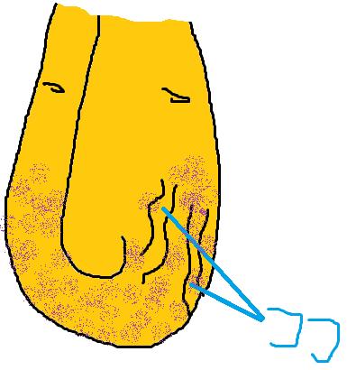 瘤 精 索 静脈